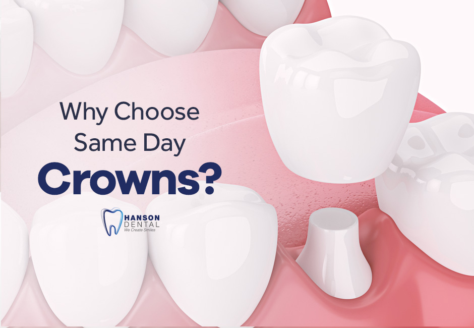 Why Choose Same Day Crowns?