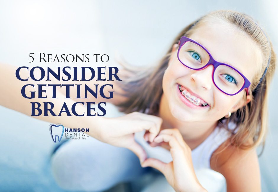 5 Reasons to Consider Getting Braces