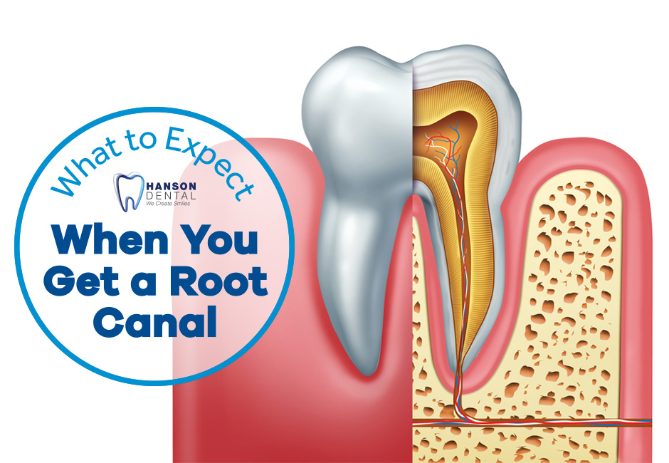What to Expect When You Get a Root Canal