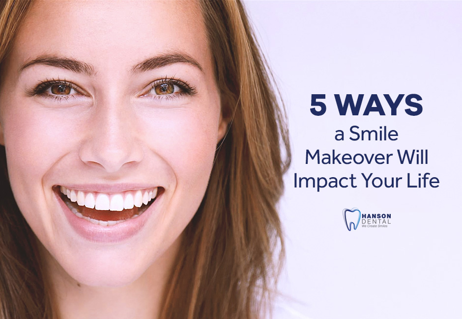 5 Ways a Smile Makeover Will Impact Your Life