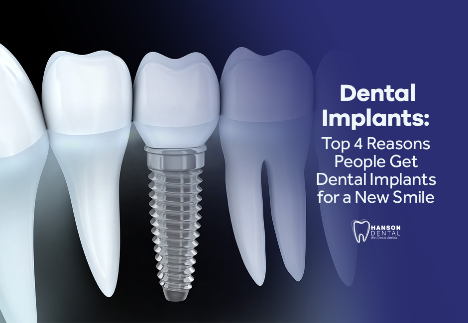 Dental Implants: Top 4 Reasons People Get Dental Implants for a New Smile