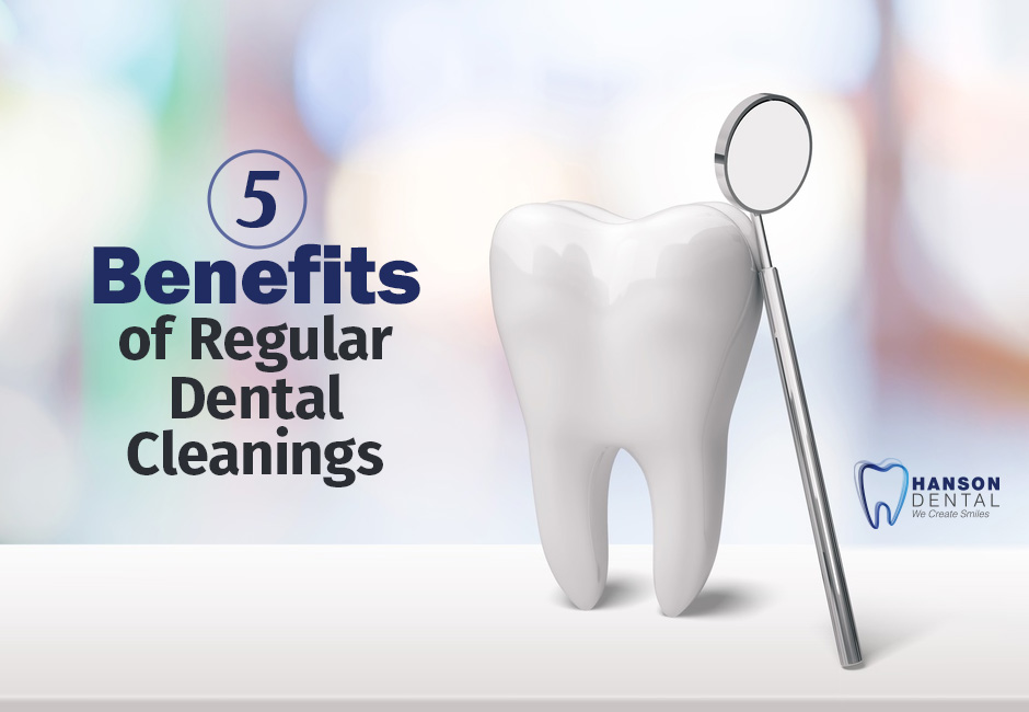 5 Benefits of Regular Dental Cleanings