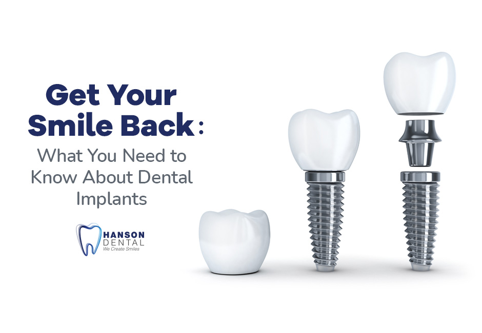 Get Your Smile Back: What You Need to Know About Dental Implants