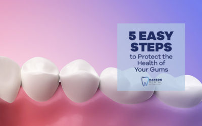 5 Easy Steps to Protect the Health of Your Gums