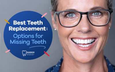 Best Teeth Replacement: Options for Missing Teeth
