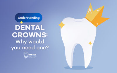 Understanding dental crowns: Why would you need one?
