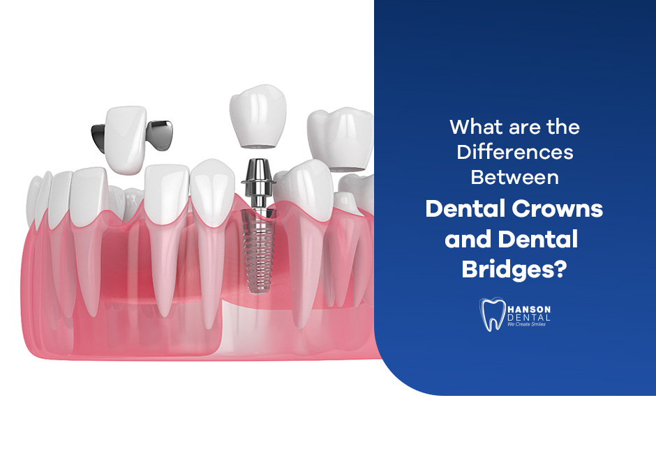 What are the Differences Between Dental Crowns and Dental Bridges?