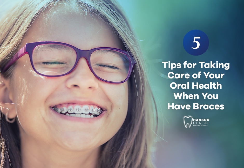 Four Tips for Taking Care of Your Oral Health When You Have Braces